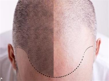 Grote foto haartransplantatie hoofddorp diensten en vakmensen haartransplantatie